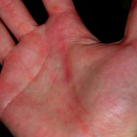 What can cause red spots on the palms of the hands ...